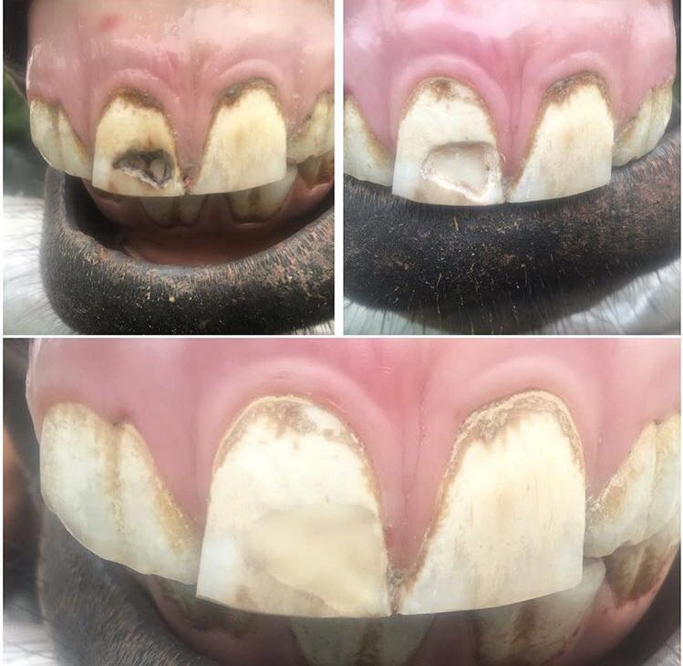 La caries es una enfermedad de los tejidos calcificados de los dientes q se caracterizan por desmineralización de las sustancias inorgánicas y destrucción de las orgánicas del diente
